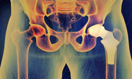 Hip Replacements � A Double Edged Sword