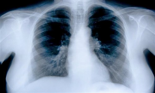 Lung Injury Lawyer